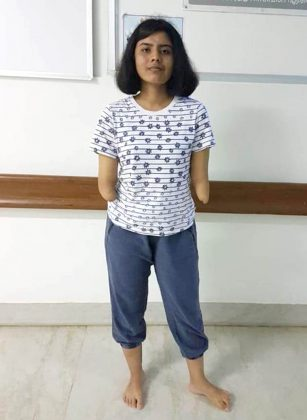 Pune-Woman-Undergoes-first-male-to-female-double-hand-transplant-in-Amrita-Hospital-03