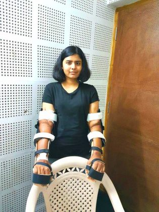 Pune-Woman-Undergoes-first-male-to-female-double-hand-transplant-in-Amrita-Hospital-04
